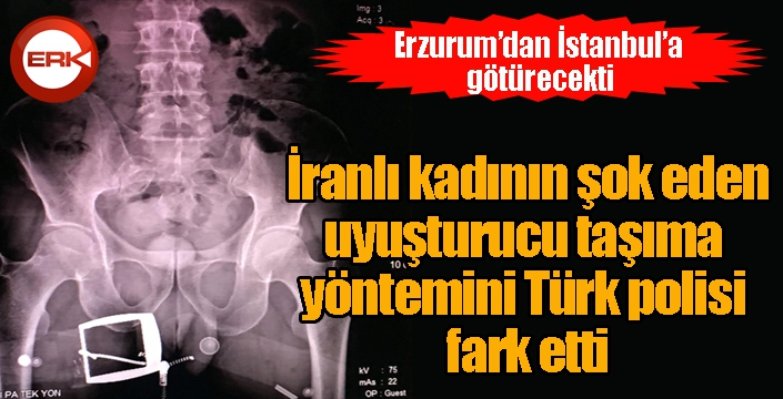 İranlı kadının şok eden uyuşturucu taşıma yöntemini Türk polisi fark etti